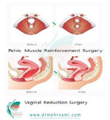جراحی-تنگ-کردن-واژن