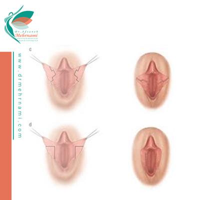 جراحی-لابیاپلاستی