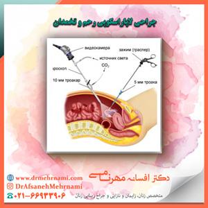 جراحی لاپاراسکوپی رحم و تخمدان